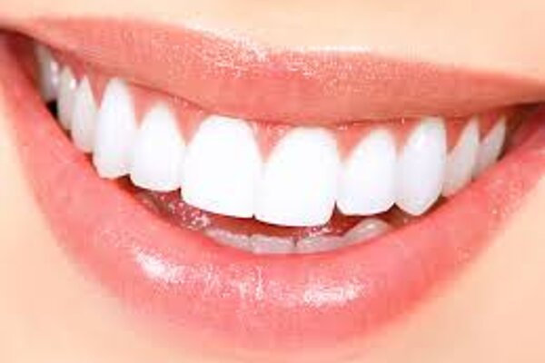 Singing Dentist - Tooth Whitening
